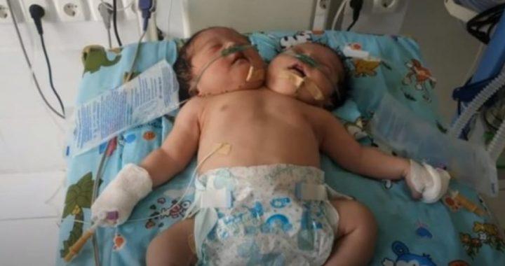 Двухголовые сиамские близнецы родились в Узбекистане. Родители отказались от них